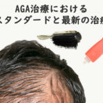 AGA治療におけるスタンダードと最新の治療